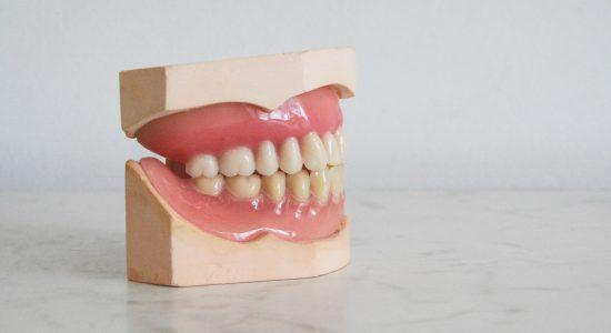 Prothèses dentaires complètes et partielles | Clinique Dento Plus