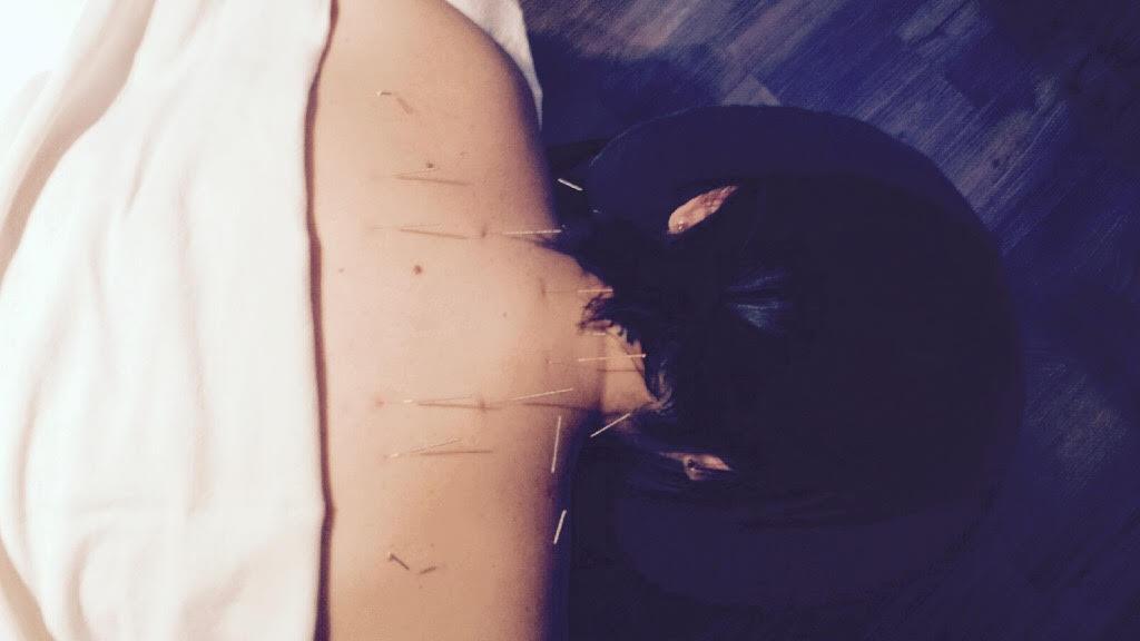 Séance acupuncture + massothérapie | Clinique de soins Être